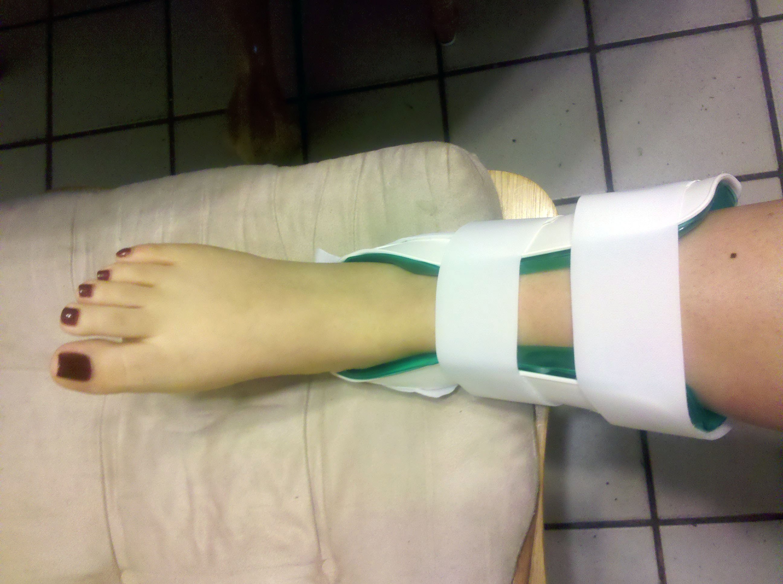 Ankle Sprain 03