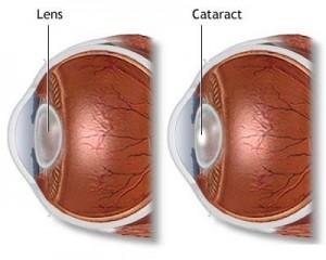 Cataract Surgery 02