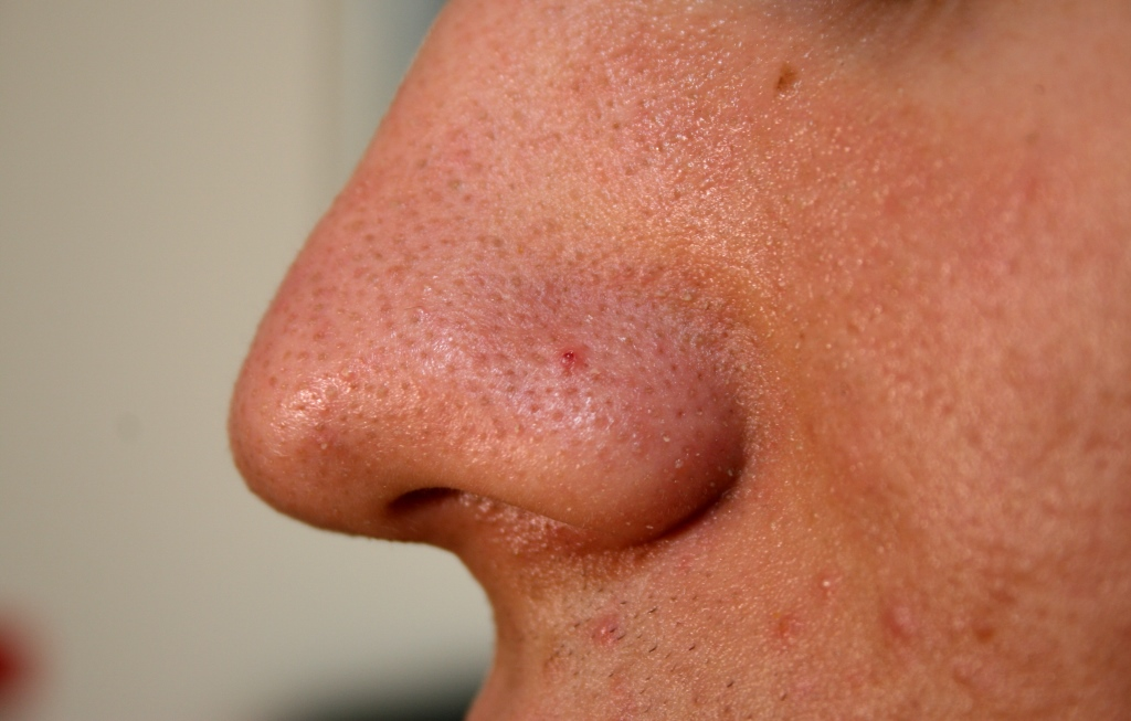acne on nose